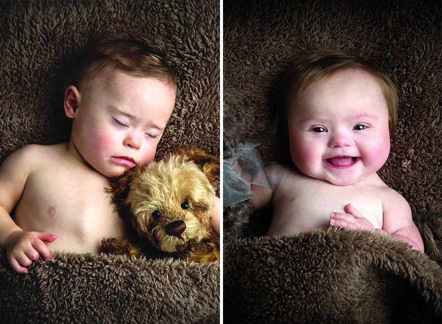 Babies with Down's Syndrome photoshoot (2)