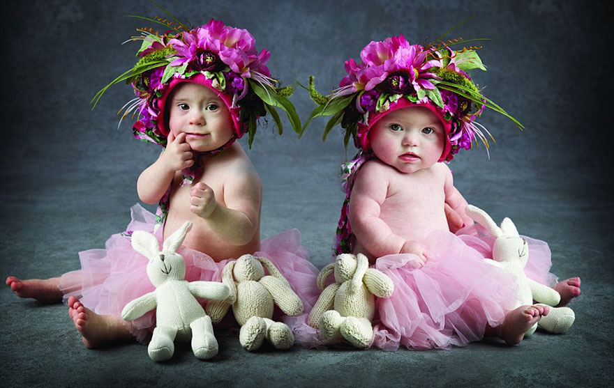 Babies with Down's Syndrome photoshoot (3)