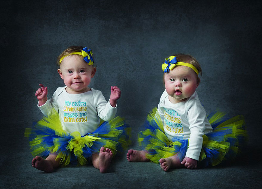 Babies with Down's Syndrome photoshoot (7)