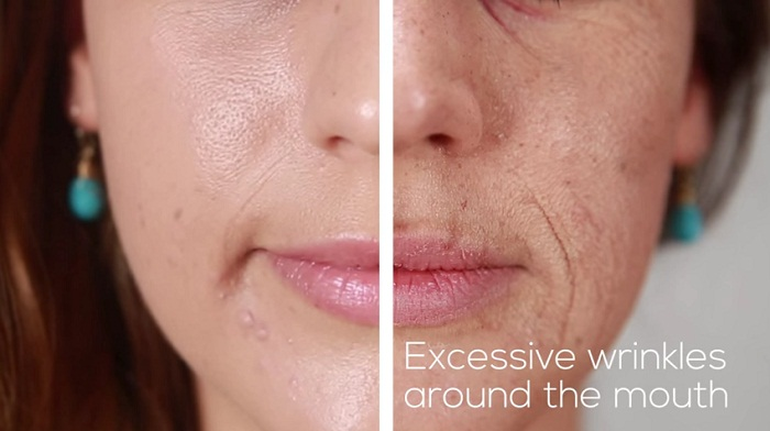 How Does Smoking Affect Your Face wrinkles around the mouth
