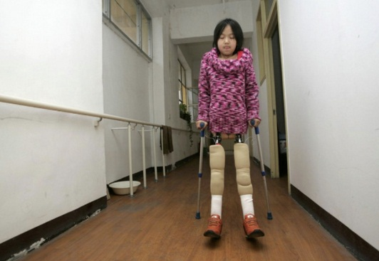Qian Hongyan basket ball girl prosthetic legs