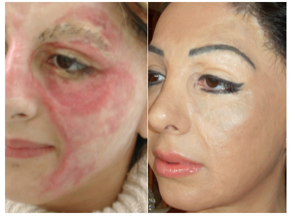 basma hameed before and after images of being tattooed